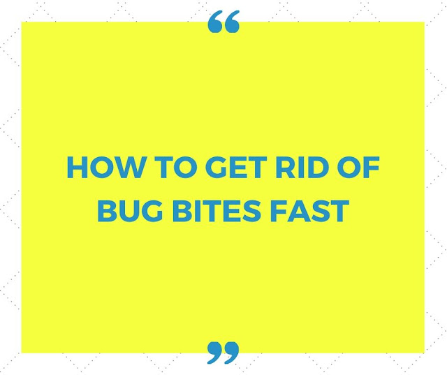 How to get rid of bug bites fast