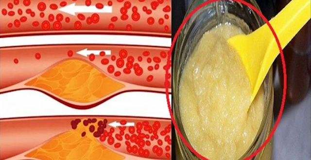 Cholesterol is a fatty substance naturally produced by our body and contributes to its proper functioning. However, an increase in the level of bad cholesterol in the blood and its accumulation on the walls of the arteries and blood vessels can obstruct the latter and hinder the flow of blood, thus causing a stroke or infarction.    There are approximately 60,000 heart attacks in canada each year and 14 people die per day by heart attack, or 2,400 deaths per year. To avoid this and keep your cholesterol under control, here is a very effective natural recipe, to prepare at home.    In addition to causing significant weight gain, eating processed or high-fat foods and lack of physical activity can have very serious health consequences, such as narrowing or complete blockage of the arteries. .    To avoid this and keep a fluid blood circulation in the body, it is important to adopt a healthy and balanced diet, rich in fresh and natural foods and to do regular physical exercises that burn the extra calories, purify the body and tone it up. It is also recommended to drink at least 1.5 liters of water a day to ensure the body a good hydration and contribute to better evacuation of toxins.    To help keep your cholesterol levels under control, to clear your arteries and lower your blood pressure, discover this recipe with 100% natural ingredients.    Effective drink to unclog arteries, reduce blood cholesterol and hypertension    Ingredients:  1 kilo of lemons (preferably organic) Baking soda 5 or 6 bunches of parsley 12 cups of water   Preparation:    The first step is to wash the lemons carefully. If you can not get these organic citrus fruits, wash them with the mixture of cold water and baking soda, to get rid of pesticide residues. As soon as your lemons are clean, cut them into small pieces without peeling them.    Boil the water and add the chopped parsley. Let infuse for ten minutes, then add the lemon pieces and a teaspoon of baking soda, and place in the fridge f