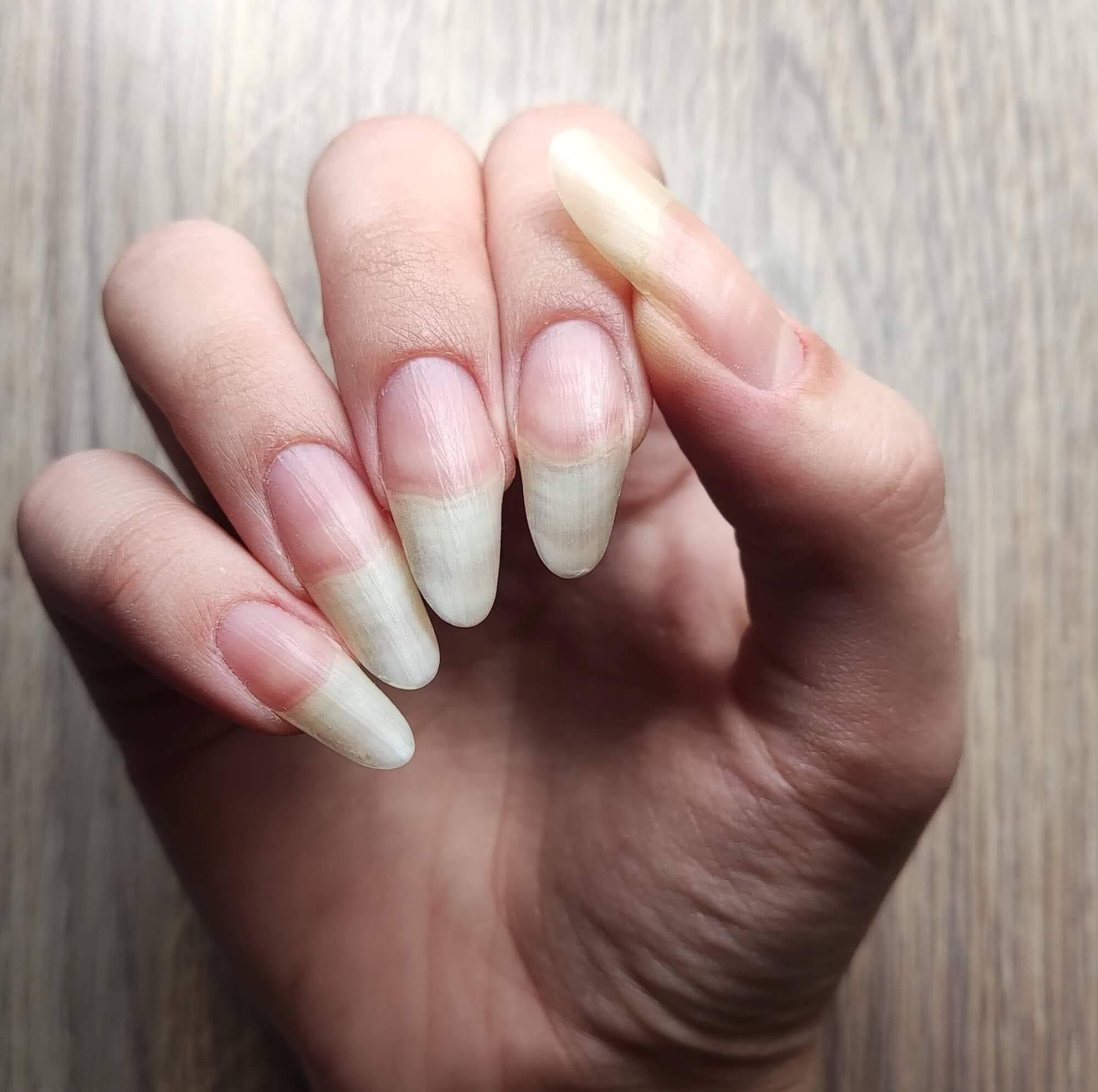 paznokcie przed skróceniem