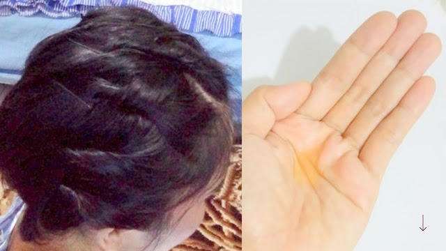 Hasil pemakaian natur hair tonic ginseng
