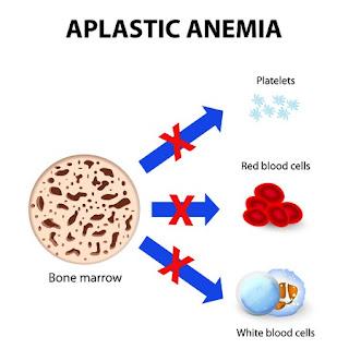 Cara alami menyembuhkan anemia aplastik