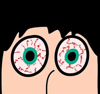 burning eyes treatment