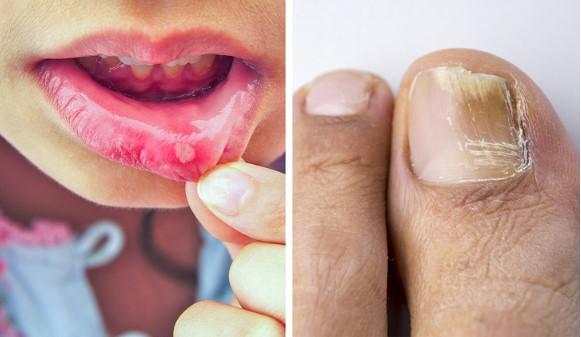8 Efek samping antibiotik yang jarang dokter beritahu