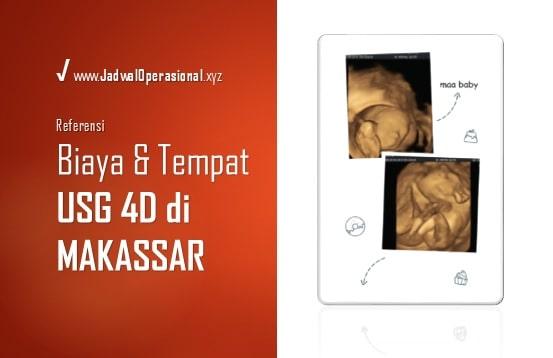 USG 4D di Makassar
