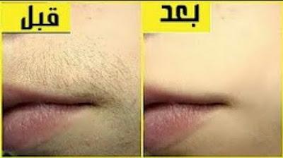 إزالة شعر الوجه بالنشا / شعر فوق الشفايف / تقليل نمو الشعروتفتييح البشرة من اول استخدام