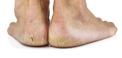 الطريقة الصحيحة لازالة التشقق من القدمين