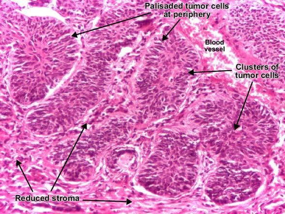 موقع الدكتور أحمد كلحى: صور باثولوجى -- Patholgy Slides ...