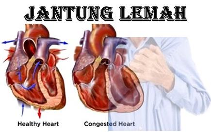 apa itu lemah jantung,lemah jantung adalah,obat lemah jantung icp capsule,lemah jantung turunan,ciri ciri lemah jantung,gejala lemah jantung,penyebab lemah jantung,makanan lemah jantung,lemah jantung dan pengobatannya,jantung lemah apa obatnya,apakah lemah jantung bisa sembuh,cara mengatasi lemah jantung,