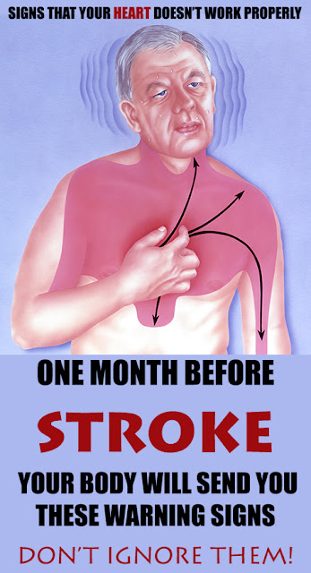 One Month Before Stroke, Your Body Will Send You These Warning Signs – Don't Ignore Them!
