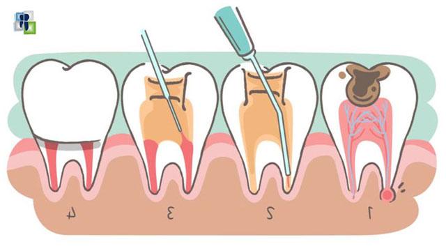 تحضير الأقنية الجذرية أثناء علاج عصب الأسنان