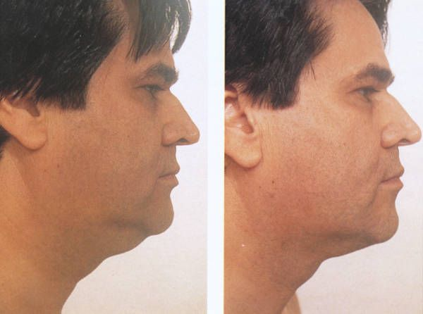 Chinese Acupressure Facelift Toning Exercises To Look Years