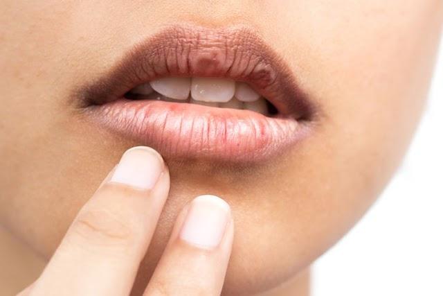 5 Penyebab Bibir Hitam Yang Wajib Diketahui