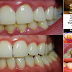 Natural way on Removing Dental Plaque Without Visiting Your Dentist