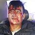 SÁENZ PEÑA: GRAVE ACCIDENTE MOTOCICLÍSTICO POR BACHES EN RUTA 95. DOS HERIDOS