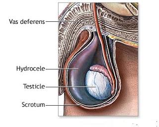 Hydrocele Symptoms | Share All Knowledge