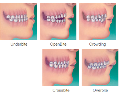 What are my Orthodontic treatment options?