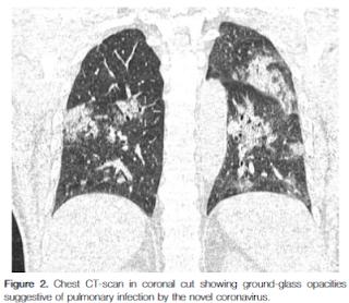 COVID-19くも膜下出血