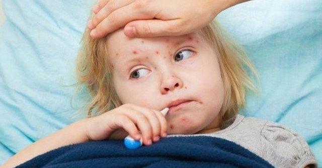 SSPE, merkezi sinir sisteminin kızamık virüsü enfeksiyonu ile ilerlemesinden oluşan bir hastalıktır.