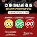 Senhor do Bonfim: Dois casos suspeitos, dois descartados e nenhum confirmado do coronavírus (COVID-19)