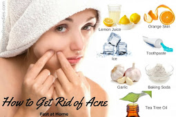 How To Get Rid Of Pimples Overnight Home Remedies
