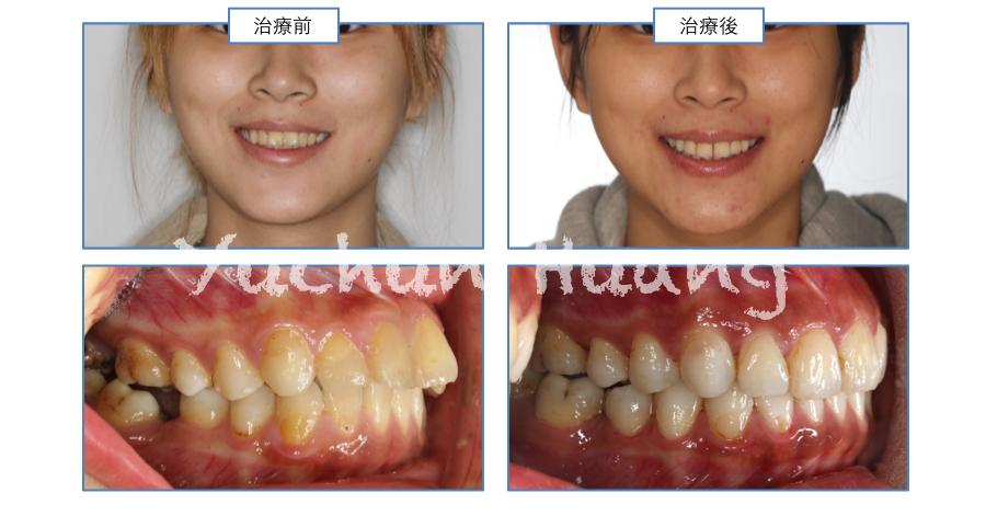 兒童及青少年牙齒隱形矯正專家 黃榆鈞醫師: 隱適美矯正—使用顎間橡皮筋合併不拔牙之案例