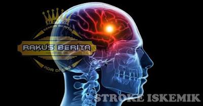 Menurunkan Resiko penyakit Stroke