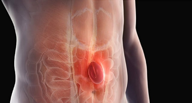 How Do You Know If You Have a Hernia?