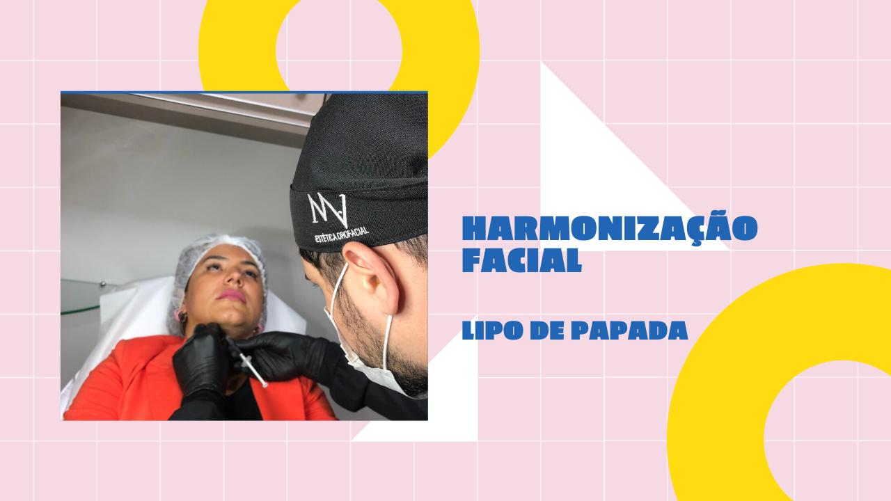 Harmonização facial em Brasília: lipo de papada com enzima