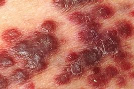 Herpes yakni suatu penyakit pada kulit tubuh yang diakibatkan serangan virus herpes 8 Jenis Penyakit Herpes (Penyebab, Gejala & Pengobatannya)