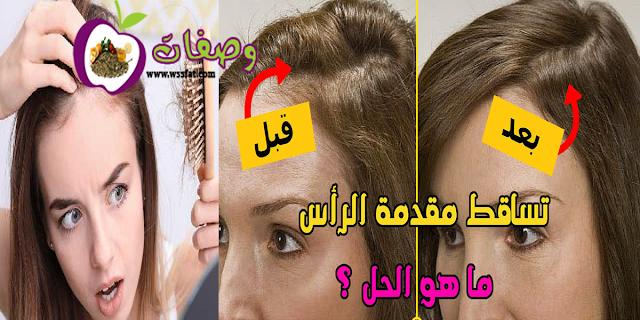 علاج تساقط الشعر عند النساء من الامام