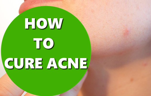 how to cure acne basichowtos.com