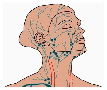 Pengobatan Herbal Kelenjar Getah Bening Di Kepala Paling Ampuh