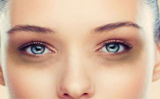 ini arti dari tanda muncul lingkaran hitam di sekitar mata