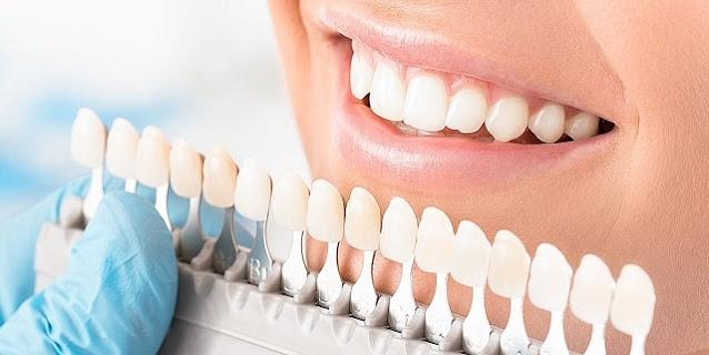 benefits of dental veneers new teeth