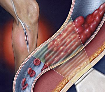 má circulação, problema de circulação, varizes, dores nas pernas, dor nas pernas, trombose