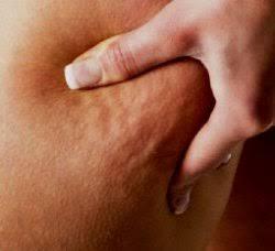 Aerobic exercise to reduce cellulite