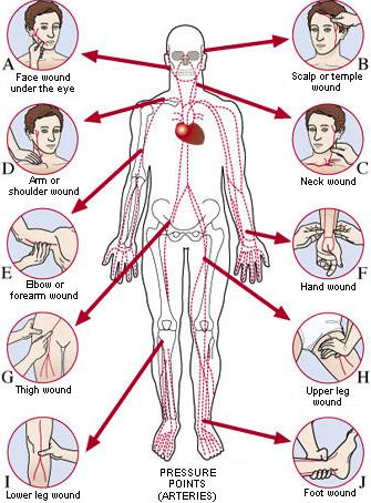 Menghentikan pendarahan dengan menekan arteri