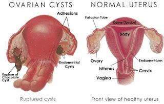 Obat Herbal Kista Ovarium Ampuh Tanpa Operasi, cara menyembuhkan kista | LADYFEM 240 /BOX SOLUSI AMPUH, FIFORLIF | Pelangsing Tubuh: LADYFEM Kapsul Untuk Penyakit Kista