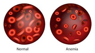 Mencegah Penyakit Anemia