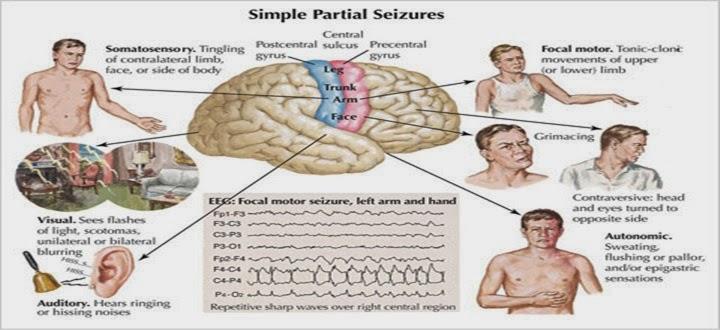 Epilepsy, Seizures, FITS   test