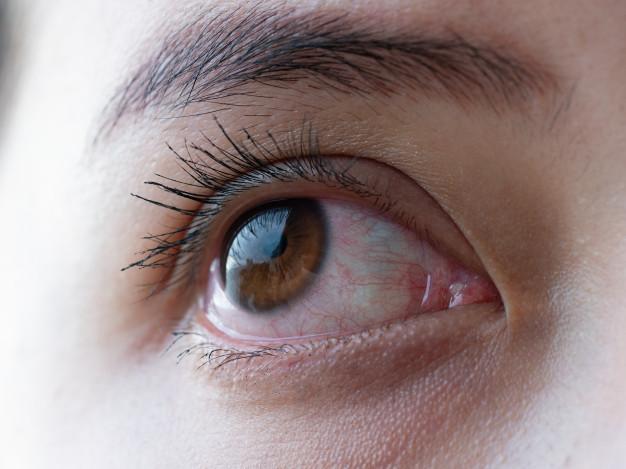 4 alternatives naturelles pour soigner les infections des yeux