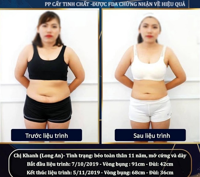 Chị Kim Khanh giảm béo thành công tại Viện Thẩm Mỹ Passion