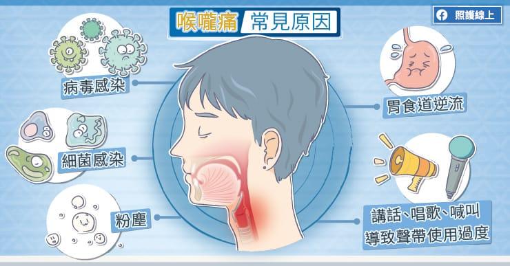 喉嚨痛常見原因。