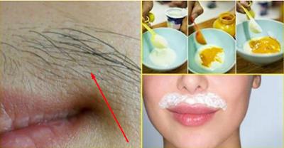 Comment en finir avec les poils indésirables du visage naturellement et définitivement