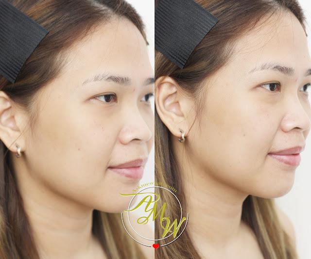 a photo of SCO Bodyscreen and Facescreen