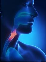 Mengenal Lebih Dekat Gejala-gejala Umum Kanker Esofagus