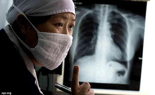 Benarkah Penularan Tbc Melalui Hubungan Intim