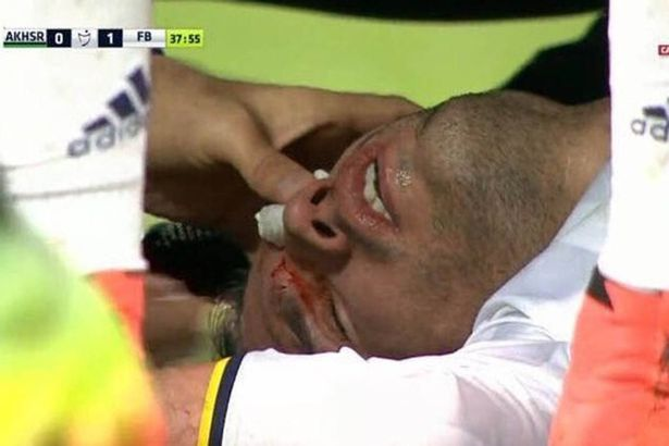 Photos: Van Persie Suffers Horrific Eye Injury