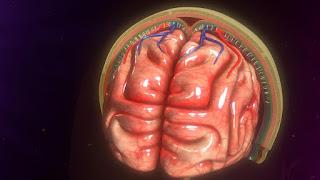 ماهو إلتهاب السحائي - الأعراض والأسباب والعلاج
