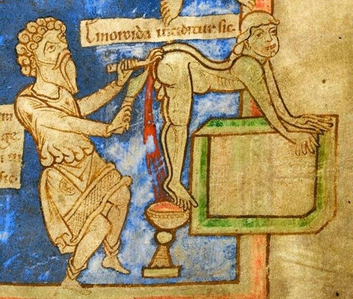 Αποτέλεσμα εικόνας για hemorrhoids 14 century